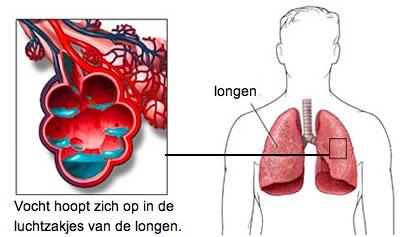 vocht achter de longen